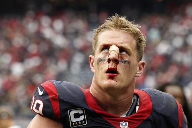 JJ Watt bloody nose