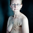 6 The Scar Project breast cancer by David Jay October 2013 ghfghfh