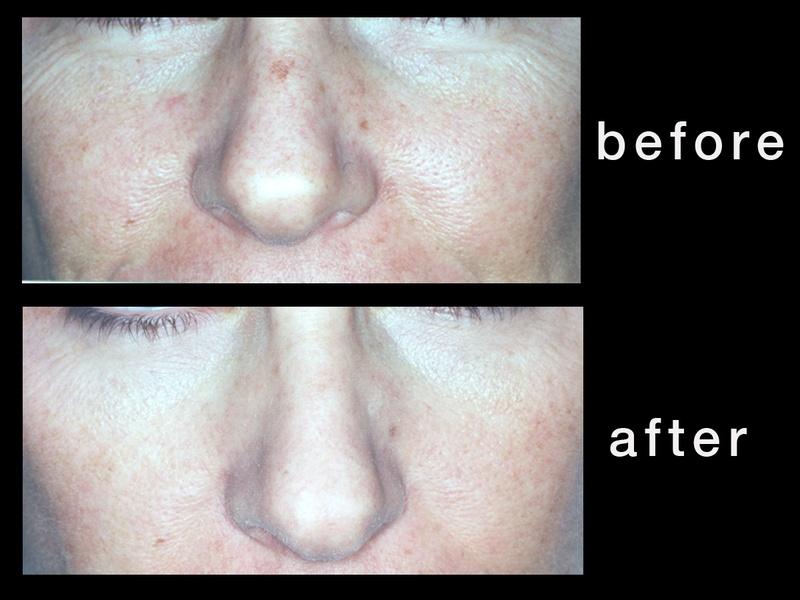 Austin Photo Set: dr. zimmet_skin treatment_feb2013_face2