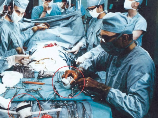 Dr. Michael DeBakey, right, and Dr. Jimmy Howell, left, implant one of the first Baylor/Rice ventricular assist devices (circled in red) at The Methodist Hospital in 1966.