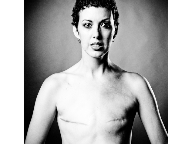 2 The Scar Project breast cancer by David Jay October 2013 092b-Edit