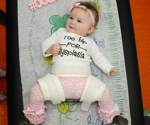 Baby being treated for hip dysplasia