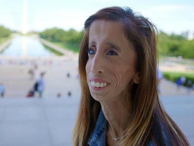 Lizzie Velasquez SXSW documentary